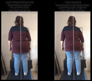 שיעור סומטי - סקוליוזיס